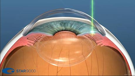 Acovista - Iridotomia laser.png