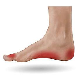 Foot_Pain area.jpg