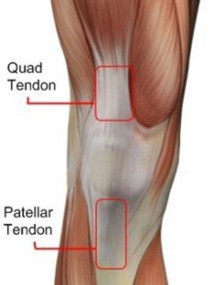 patellar-tendonitis.jpg