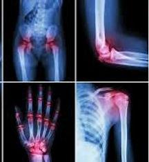 Arthritis icon.jpg