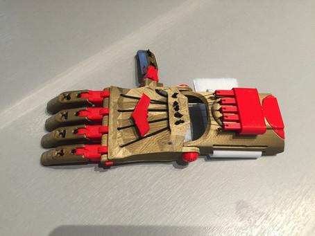 Prothèses et Impression 3D, duo gagnant !