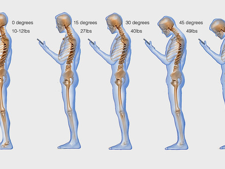 The Importance of Proper Spinal Curvatures