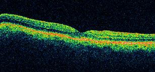 Epi Retinal Membranes
