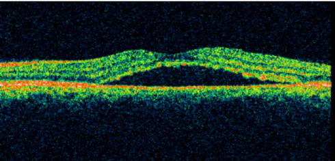 Central Serious Retinopathy