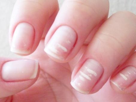 Aspecto das unhas pode indicar como anda a saúde do corpo