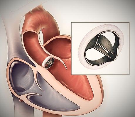 aortic valve repl_edited.jpg