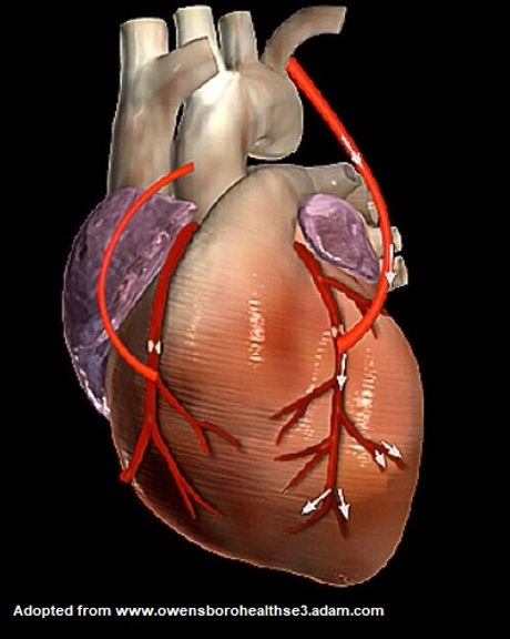 coronary bypass1.jpg