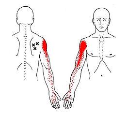 Figure 1 Infraspinatus.jpg