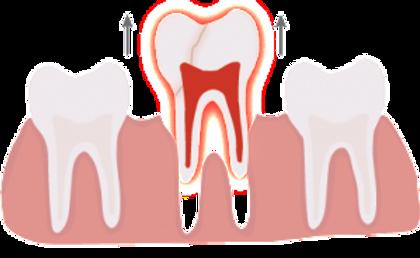 teeth extraction Houston