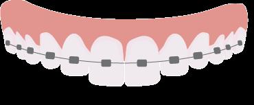 traditional braces Houston