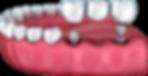 dental-implants.png