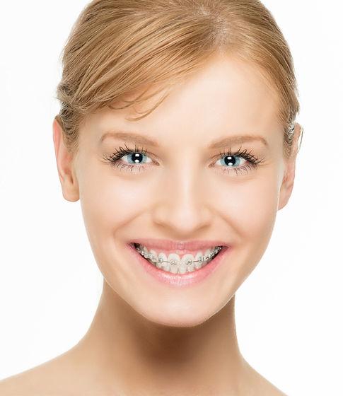 orthodontics Houston