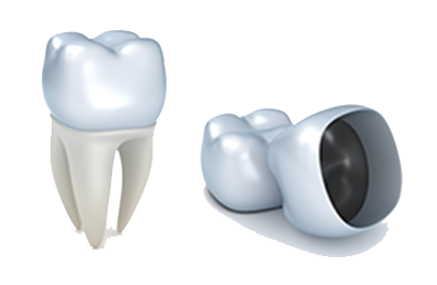 Dental-Crowns_10.png