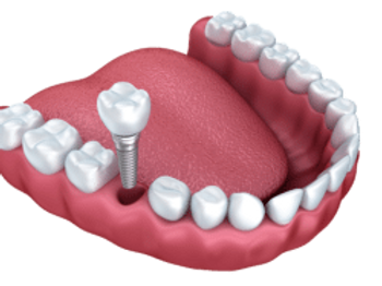 dental-implant-without-background-copy-2