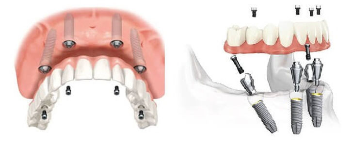 all-on-4-dental-implant_edited.jpg