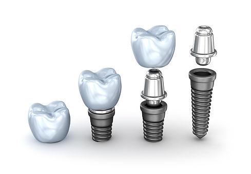 Dental Implants Bonita.jpg