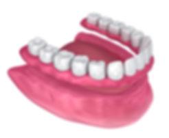 dentures (2).jpg