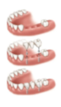 dental implants Houson