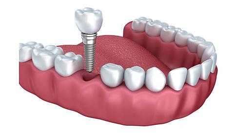 Dental-implants-explained_2.jpg