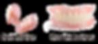 Dentures-partial_complete2.png