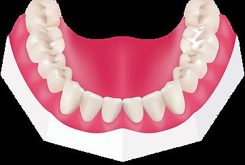 dental sealent Houston
