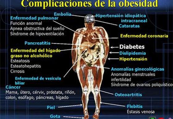 Complicaciones de la litiasa biliar por hipertensión