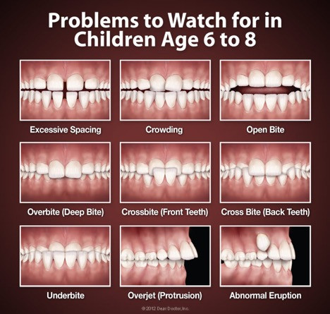 Dental Problems to Watch
