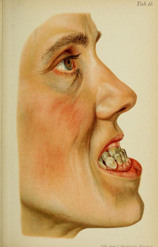 class III profile, Atlas and Text-Book of Dentistry. Gustav Preiswerk, translated by George W. Warren, 1906.