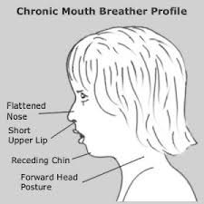 Mouther Breather Profile