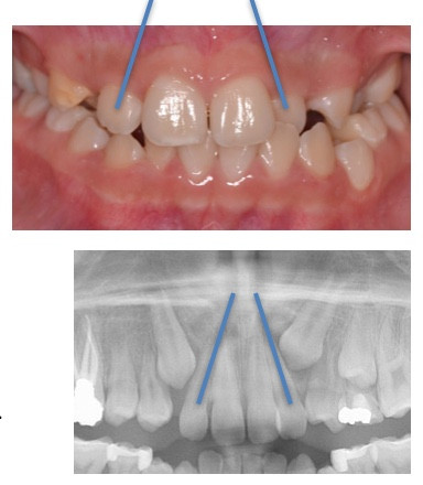 Flared lateral incisors