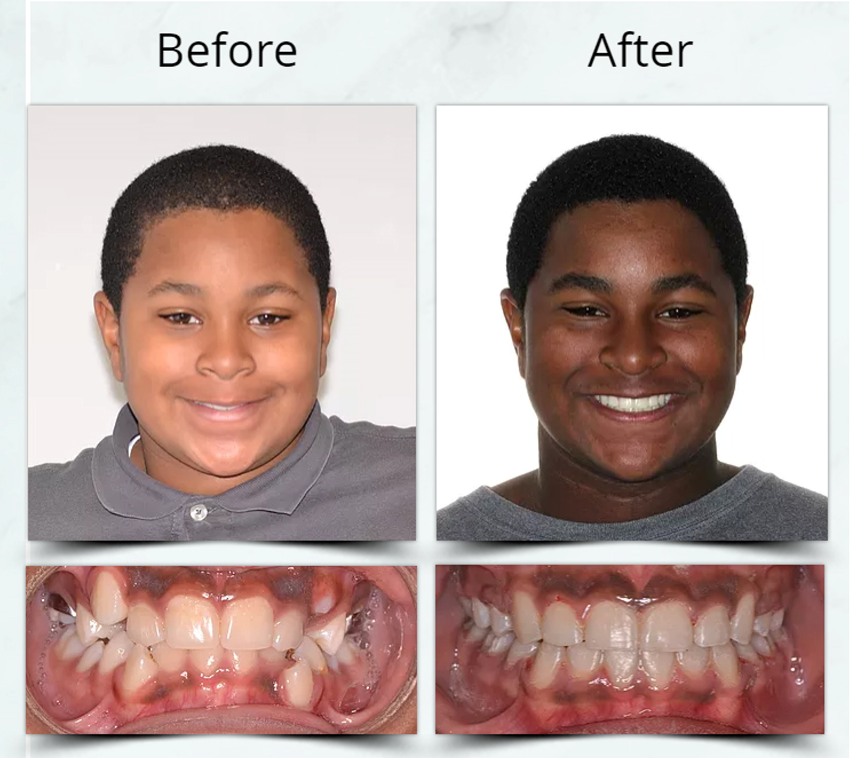 Orthodontic Extraction Treatment