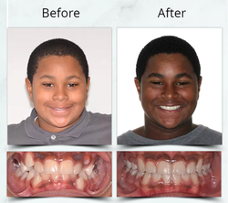 Orthodontic Extraction Treatment
