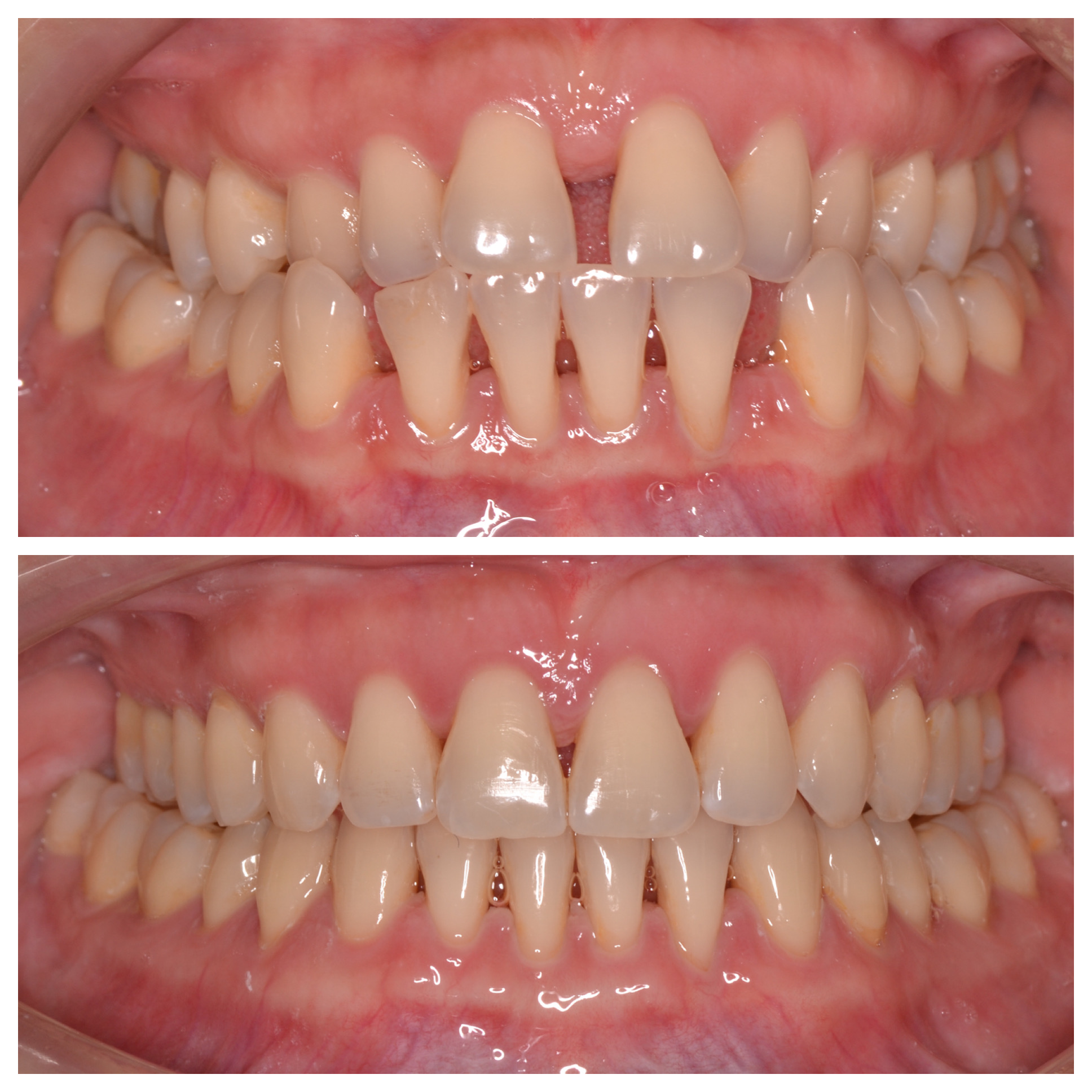 Periodontically Compromised Ortho