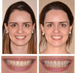 Occlusal Cant Correction