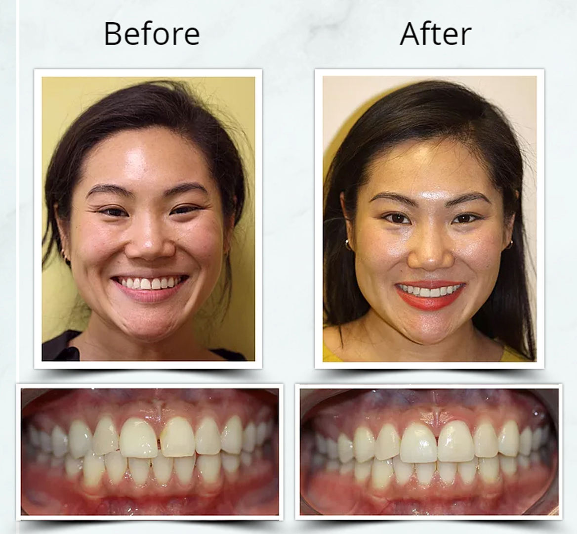 Invisalign Combined Treatment