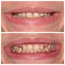 Interventional Orthodontics
