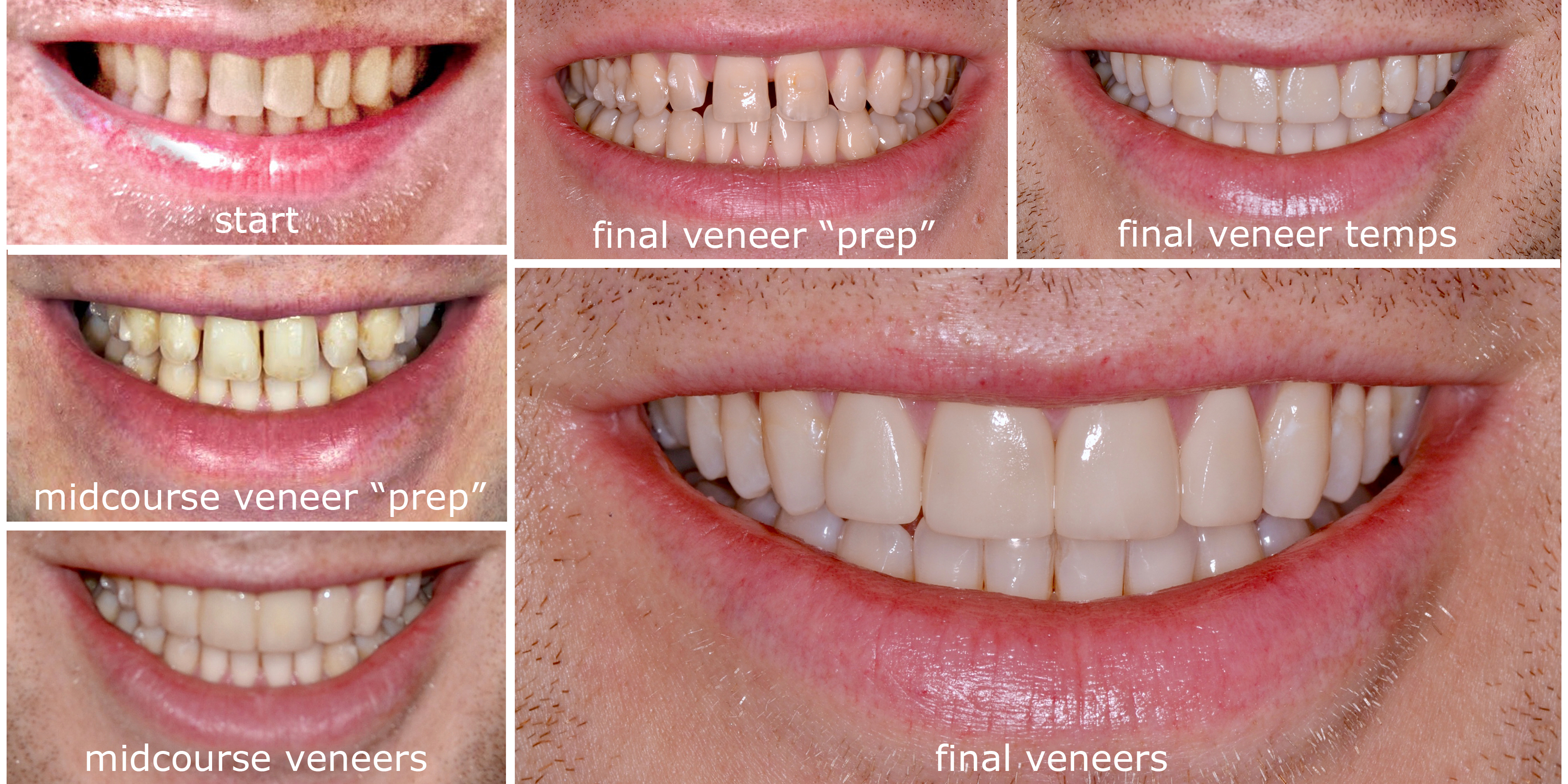 "Conservative ""No-Prep"" Veneers"