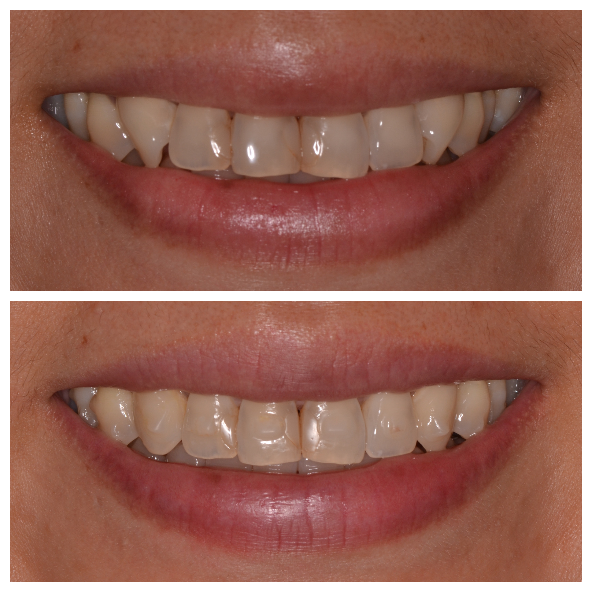 Invisalign in Progress
