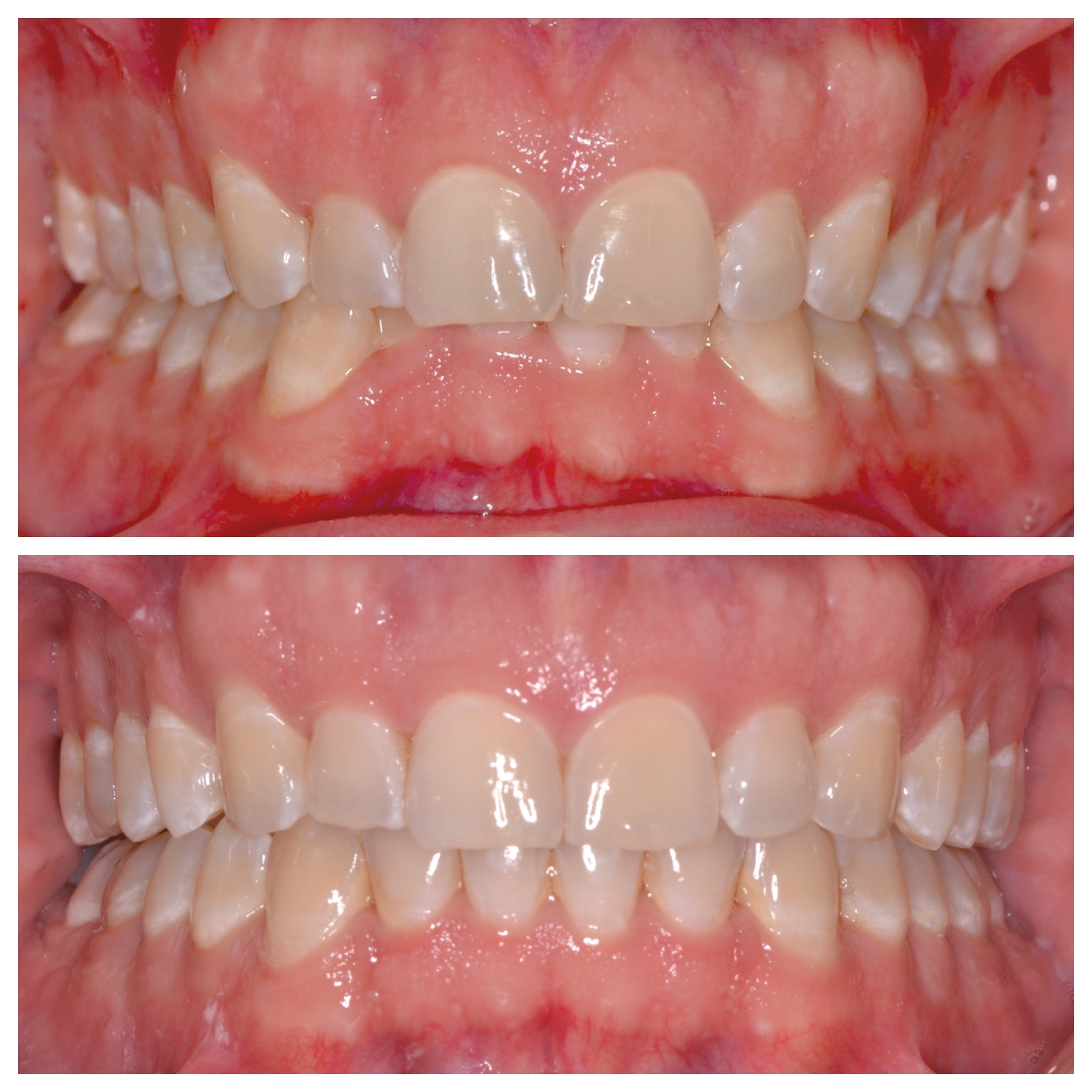 Deep Bite Invisalign Treatment