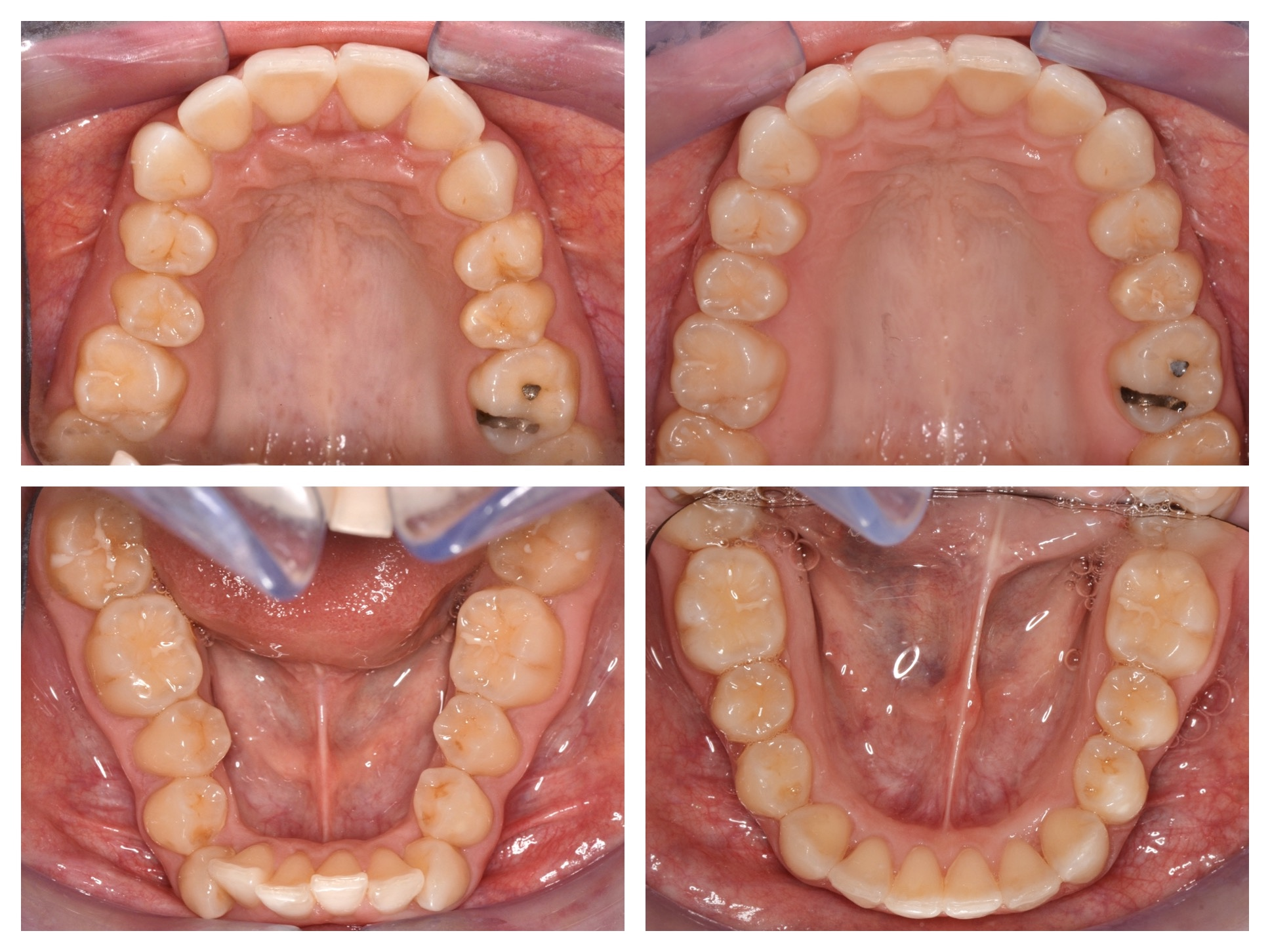 Deep Bite Treatment Arches (part 3)