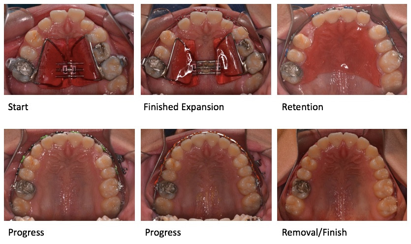 Impacted canine expansion treatment