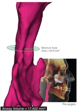 3D Airway Imaging