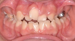 Cleft Palate Crossbite