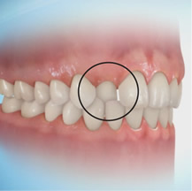 Dental Crossbite