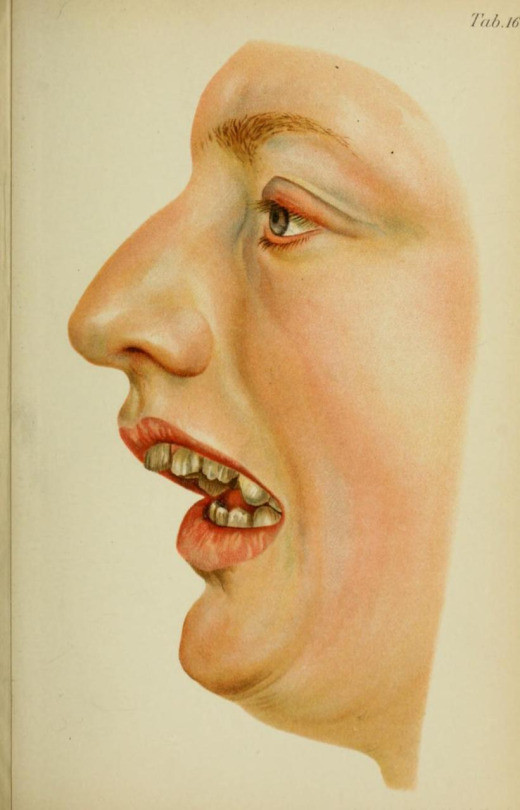 class II profile, Atlas and Text-Book of Dentistry. Gustav Preiswerk, translated by George W. Warren, 1906.