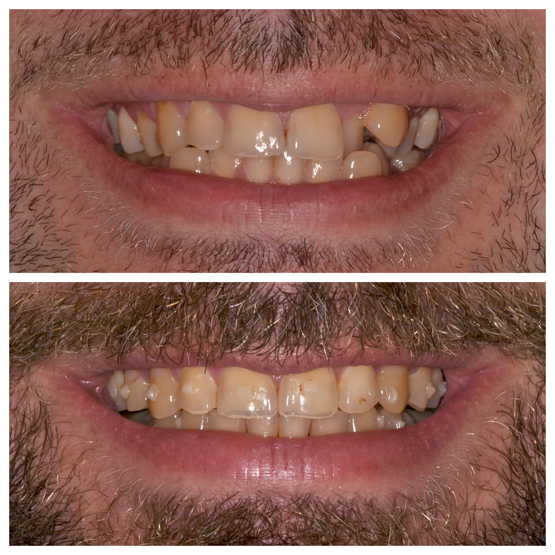 Invisalign Crowding Progress