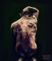 Scarred Back