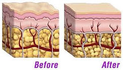 cellulite before and after.jpg