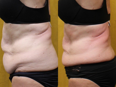 Everything You Need to Know About Affordable Body Sculpting in Scottsdale