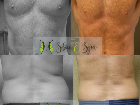 7 Reasons Why Men Should Go For Body Sculpting Treatment For Toned Body